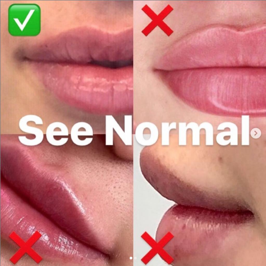 labios clasificados por el dr. harris